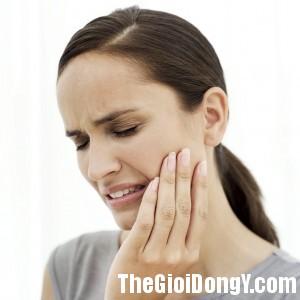 daurang 300x300 Cách giảm đau khi mọc răng khôn tại nhà