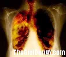 ung thư 3jpg PHƯƠNG PHÁP CHỮA UNG THƯ MỚI…