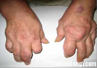 new picture 17 1f3f0 Bài thuốc hay trị bệnh thấp khớp