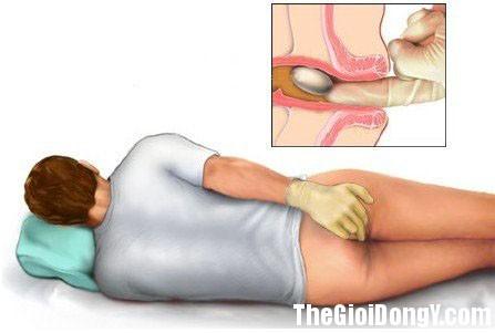 bi mat cua nu hon Bài thuốc hay cho bệnh nhân trĩ nên biết