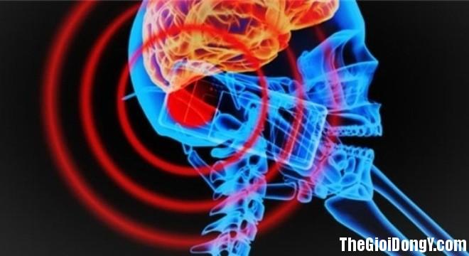 bestie tac hai cua dien thoai 3 20170311173446 Viêm mô màng não nguy cơ bị ung thư từ điện thoại di động