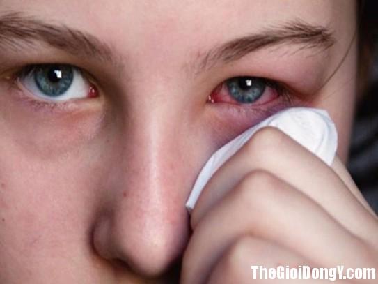 163711 dau mat543 Mẹo nhỏ để bỏ túi tránh viêm mắt, đỏ mắt trong mùa hè