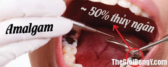 164647 thuy ngan1 Amalgam: Loại vật liệu hàn răng có chứa thủy ngân cần được giảm thiểu