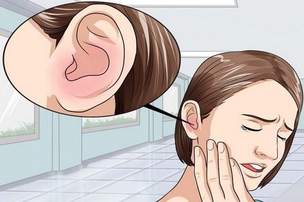 chua u tai trai phai 16133162 Phát hiện được phô mai có khả năng chữa điếc