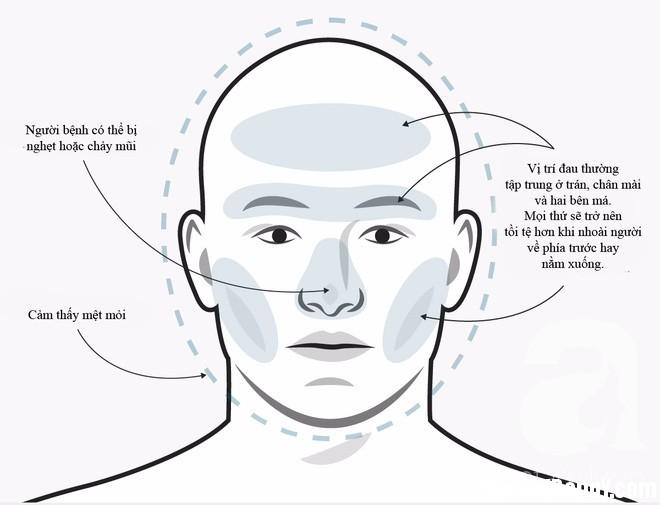 photo 1 1496731968512 Không phải cơn đau đầu nào cũng sẽ giống nhau, phải biết phân biệt để điều trị đúng cách và kịp thời
