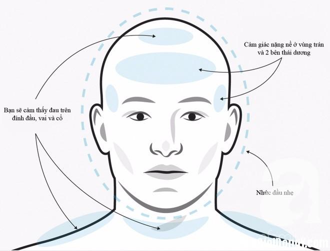 photo 1 1496731970639 Không phải cơn đau đầu nào cũng sẽ giống nhau, phải biết phân biệt để điều trị đúng cách và kịp thời