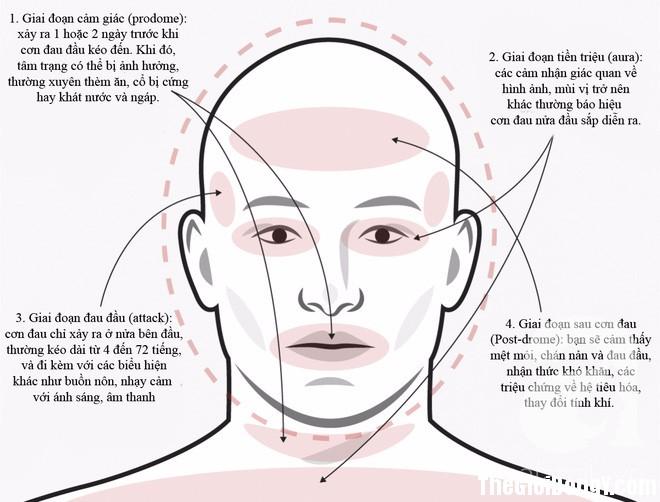 photo 2 1496731970641 Không phải cơn đau đầu nào cũng sẽ giống nhau, phải biết phân biệt để điều trị đúng cách và kịp thời