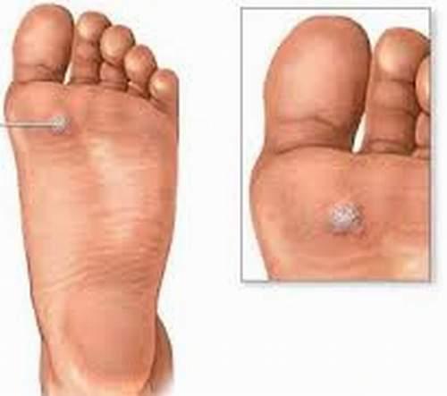 chai chan be0cd Bài thuốc chữa chai chân cực hiệu quả nên áp dụng rộng rãi
