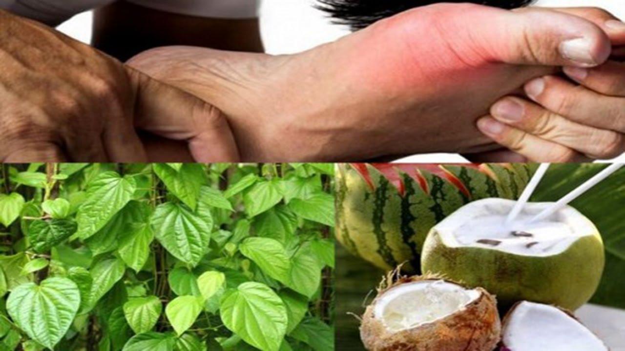 chua gout bang trau khong nuoc dua Bài thuốc trị bệnh gout hiệu quả từ nước dừa và lá trầu không