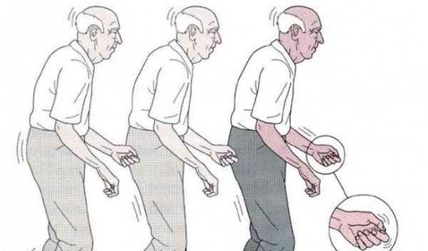 benh parkinson co dieu tri khoi khong anh huong the nao den suc khoe11467601590 300x176@2x Bài thuốc đông y hay chữa bệnh Parkinson cho người cao tuổi