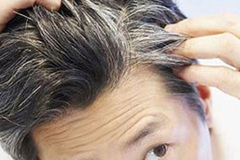 chua toc bac som tu y hoc co truyen 3 phương pháp chữa tóc bạc sớm từ y học cổ truyền