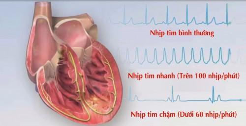 benh tim dap nhanh hoi hop 1 500x257 Bài thuốc dân gian điều trị chứng tâm hỏa thịnh