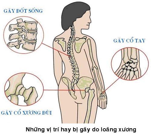 loang xuong 1 1698 1442380708 Món ăn bài thuốc giúp mạnh gân xương bạn nên biết