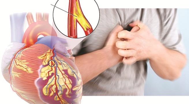 cac benh ve tim Cây thuốc có công dụng hỗ trợ chữa bẹệnh tim mạch hiệu quả
