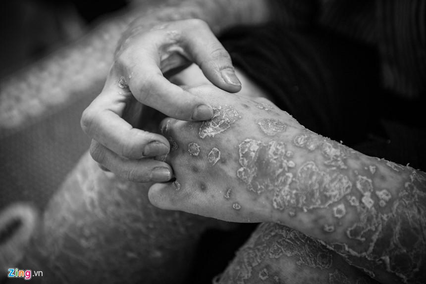 15 vaynen zing Câu chuyện điều trị và ám ảnh suốt đời của bệnh nhân bị bệnh vảy nến