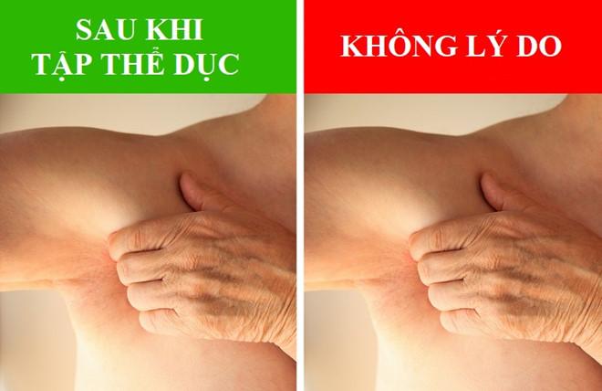 nach 4 Những biểu hiện lạ của vùng da dưới cánh tay báo hiệu điều gì?