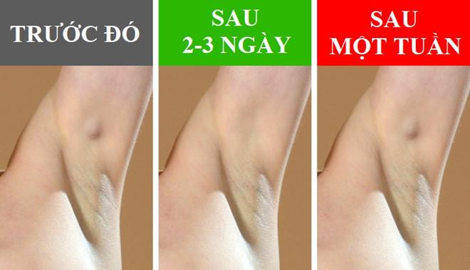 nach 5 Những biểu hiện lạ của vùng da dưới cánh tay báo hiệu điều gì?