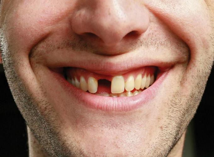 gayrang Y học tiến bộ, răng gãy có thể cắm lại được?
