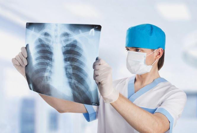 phuong phap dieu tri benh ung thu phoi giai doan cuoi 1 hwyr Thiếu niên 15 tuổi chết vì ung thư phổi do tiếp xúc với khói thuốc thụ động