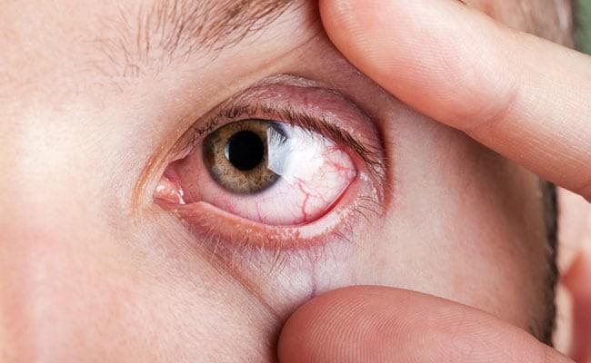 photo 2 154496647697751927293 Khô mắt là dấu hiệu bệnh gì? Làm sao để phòng tránh?