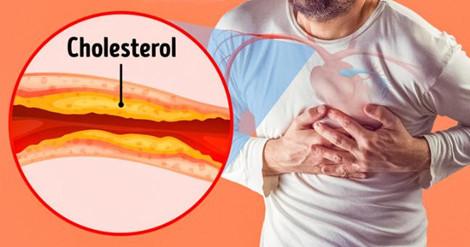 047002 notc Nhận biết dấu hiệu tắc nghẽn động mạch để điều trị sớm