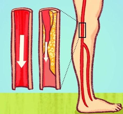 047006 ipvl Nhận biết dấu hiệu tắc nghẽn động mạch để điều trị sớm