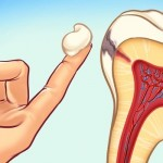 1-simple-ways-to-prevent-tooth-decay-1349382