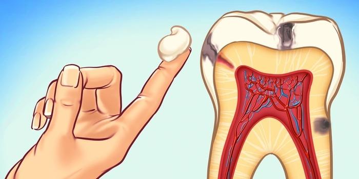 1 simple ways to prevent tooth decay 1349382 Đánh răng thường xuyên là chưa đủ, hãy bảo vệ răng miệng như thế này
