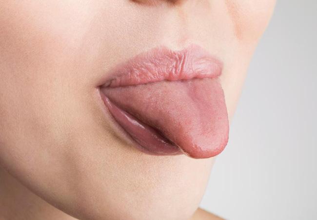ung thu tuyen tuy 1 15487369176651936368494 Ung thư tuyến tụy thể hiện trên dấu hiệu lạ của lưỡi