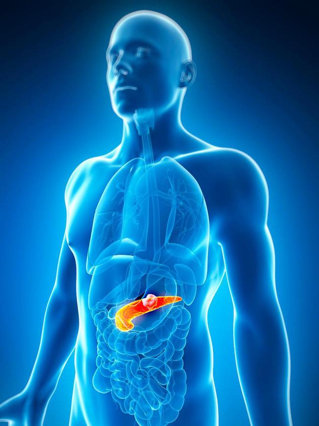 ung thu tuyen tuy 2 15487369176621814639862 Ung thư tuyến tụy thể hiện trên dấu hiệu lạ của lưỡi