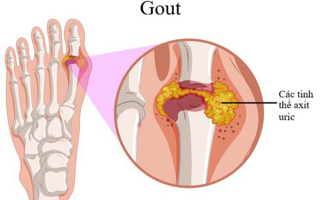 photo 1 1551690257398977177986 crop 155169062806315259317721 Bệnh gút: Triệu chứng và cách giảm đau