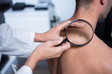 z8 snpz Những dấu hiệu nhỏ xảy ra thường xuyên là triệu chứng ban đầu của ung thư