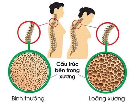 v95 kndf Loãng xương: Nguyên nhân, biểu hiện và bài thuốc chữa trị