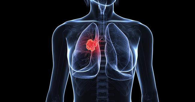 190104 1 144718 040119 10 15582898681272103779041 Nắm 8 dấu hiệu này để kịp thời phát hiện bệnh ung thư phổi
