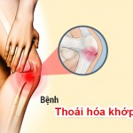 benh-xuong-khop-thuong-gap-1-1