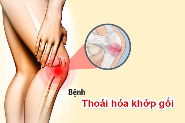 benh xuong khop thuong gap 1 1 Cùng tìm hiểu về 5 bệnh xương khớp thường mắc phải