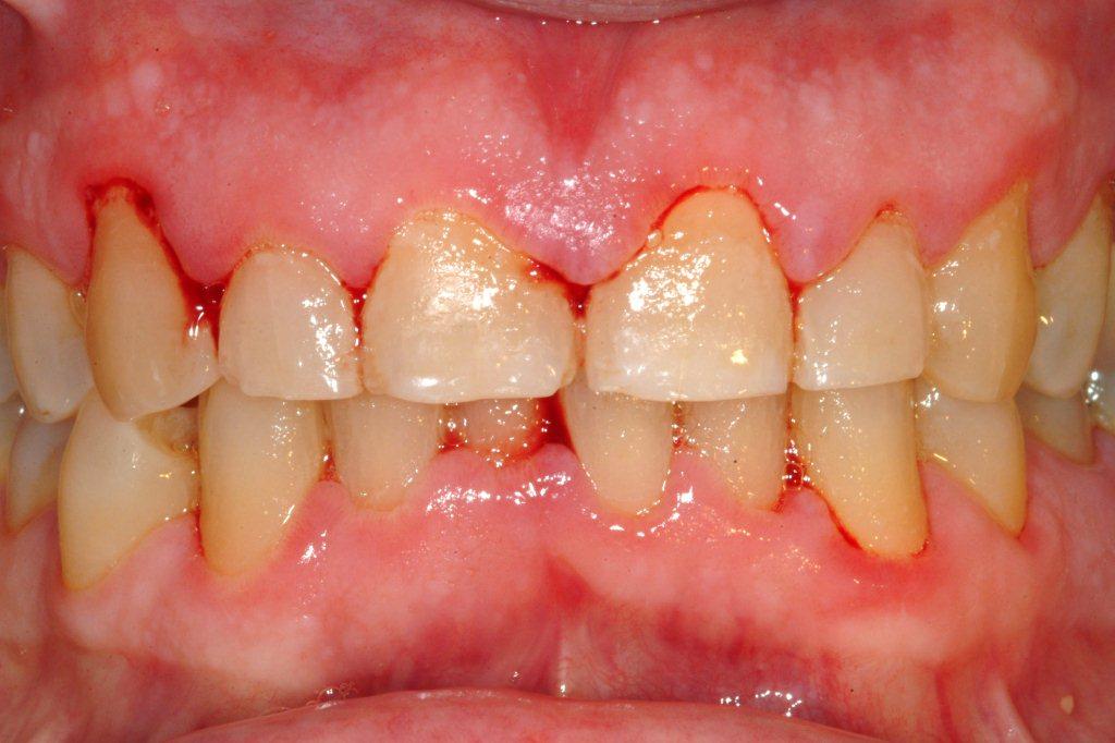 tut loi 1 Những loại bệnh răng miệng thường gặp mà người nào cũng mắc phải