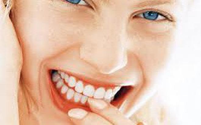 photo1561016323423 1561016323622 crop 15610163687111548540981 Chân răng chảy mủ liệu có nguy hiểm?
